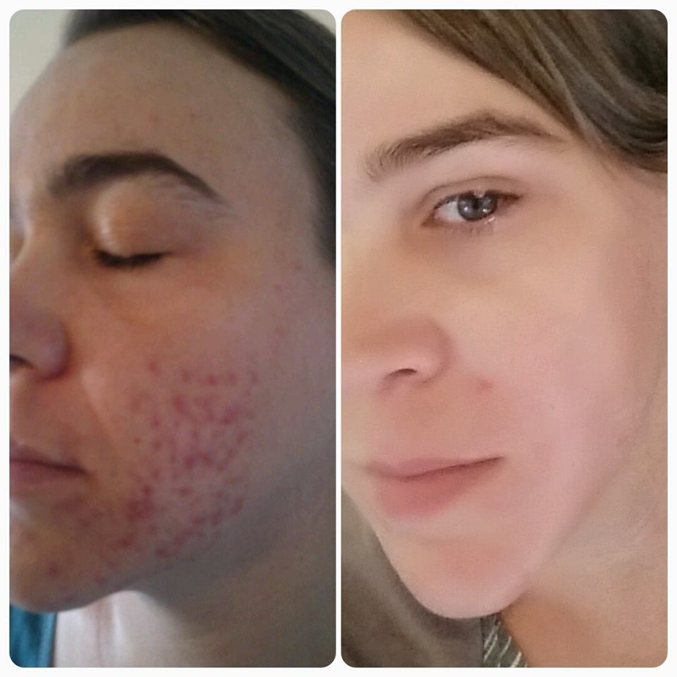 Pity, that About adult acne opinion obvious